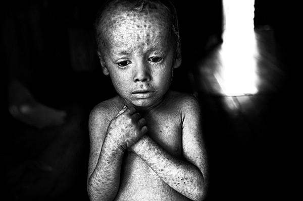 Pablo E. Piovano SIGNIERT: The Human Cost of Agrotoxins El Costo Humano de los Agrotóxicos